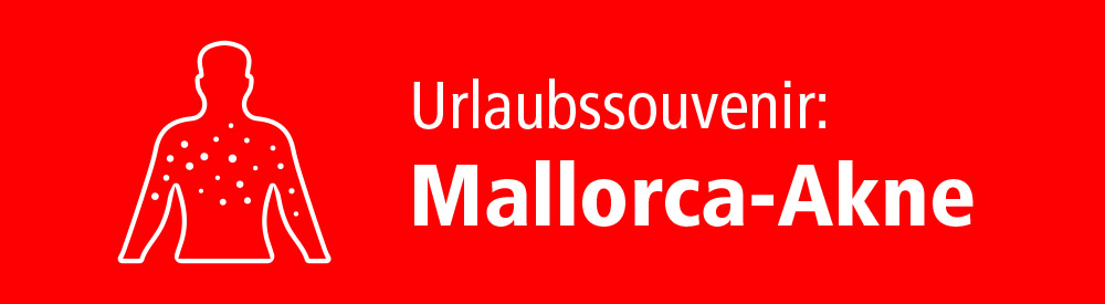 Urlaubssouvenir Mallorca-Akne