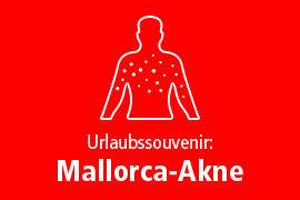 Urlaubssouvenir: Mallorca-Akne